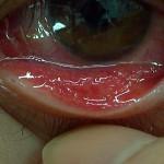 流行性角結膜炎(下眼瞼結膜)
