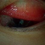 流行性角結膜炎(上眼瞼結膜)