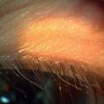 眼瞼炎(1か月後)