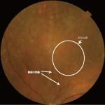 網膜静脈閉塞症による新生血管