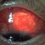 episcleritis