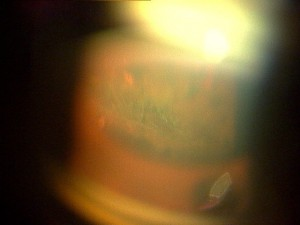網膜格子状変性に対する光凝固術後(当院にて)