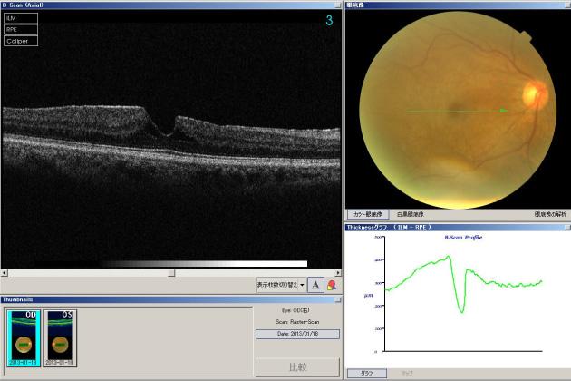 手術 孔 黄斑 円